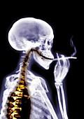 Person smoking, X-ray