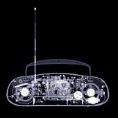 Portable stereo, X-ray