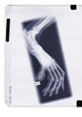 Animal claw, X-ray
