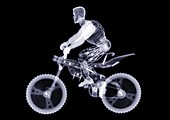 Toy model riding a mountain bike, X-ray