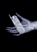 Hand holding a mobile phone, X-ray