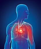 Myocardial infarction, illustration