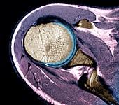 Healthy shoulder joint, MRI scan
