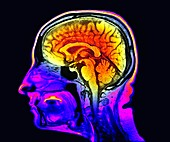 Healthy brain, MRI scan