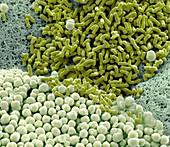 Cervical bacteria, SEM