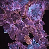 Cultured cancer cells cytoskeleton, light micrograph