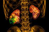 Kidney cancer, 3D CT scan