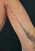 Linear epidermal naevus, historical image