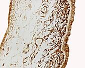 Iris, light micrograph
