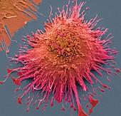 Macrophage, SEM