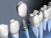 Inserting dental implant, illustration
