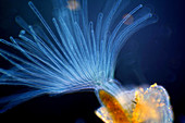 Bryozoan, polarised light micrograph