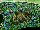 Panama disease pathogen in banana leaf, SEM