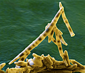 Panama disease fungus spores, SEM