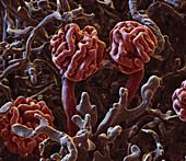 Kidney glomeruli, SEM