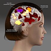Meditation to control pain, illustration