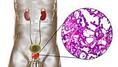 Benign prostatic hyperplasia, illustration and micrograph