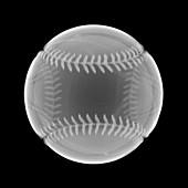 Baseball, X-ray