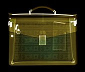 Case containing money, X-ray