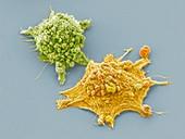 Lung cancer cells, SEM
