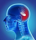 Headache treatment, conceptual illustration
