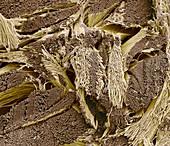 Collagen fibres, SEM