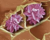 Plant druse crystal, SEM