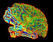 Whole brain image, computer model