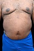 Overweight man's abdomen