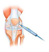 Knee surgery, illustration