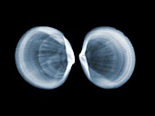 Pitted lucine clams, X-ray