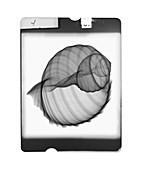 Conch seashell, X-ray