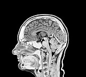 Healthy brain, MRI scan