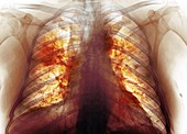 Lungs affected by Covid-19, X-ray