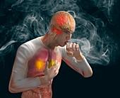 Lung irritant, illustration