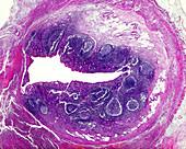 Acute phlegmonous appendicitis, light micrograph