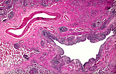 Adenosquamous carcinoma of the lung, light micrograph