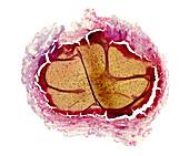 Venous thrombosis, light micrograph