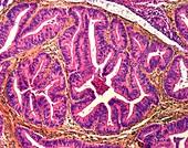 Uterine cancer, LM