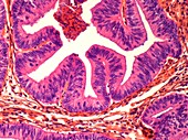 Uterine cancer, LM