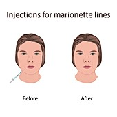 Injections for marionette lines, illustration