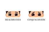 Conjunctivitis versus healthy eyes, conceptual illustration