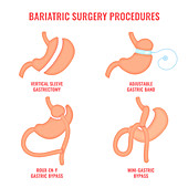 Bariatric surgery types, conceptual illustration