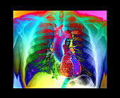 Chest and heart, CT scan and X-ray