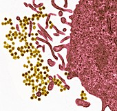 Epstein-Barr virus particles, TEM