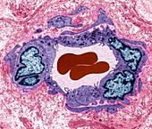 Testicular cancer capillary, TEM
