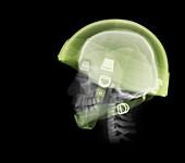 Skull wearing helmet, X-ray