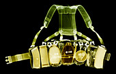Military webbing belt, X-ray