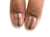 Discoloured nails