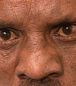 Saddle nose deformity due to leprosy